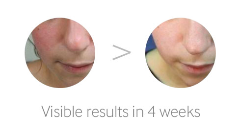 Visible Results in 4 weeks